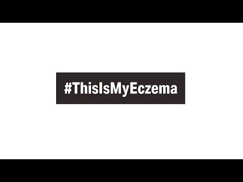 NEA's Eczema Awareness Month 2021 Explores The Heterogeneity Of...