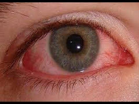 صدى البلد طبيب عيون يكشف العلاج الأمثل لمرضى حساسية العين Youtube