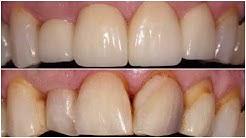 Mark - Cosmetic Crowns & Veneers - Austin General Dentistry