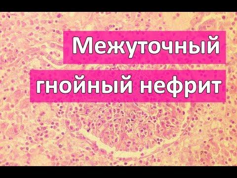 Гиперкинез симптомы, причины болезни, фото, признаки