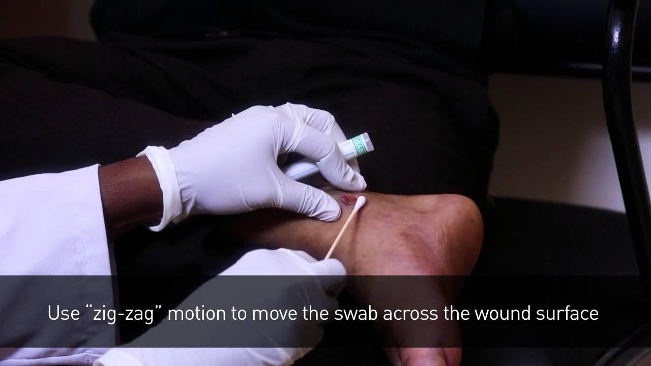 healthcare wound swab collection procedure
