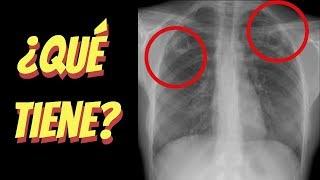 Coágulo el un en pulmón sangre de en una radiografía? ¿Aparecerá