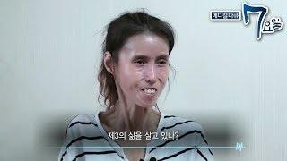메디컬 다큐 7요일 - 내 딸 수정이- 신경섬유종 외_#002