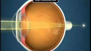 Myopia (Disease Or Medical Condition)