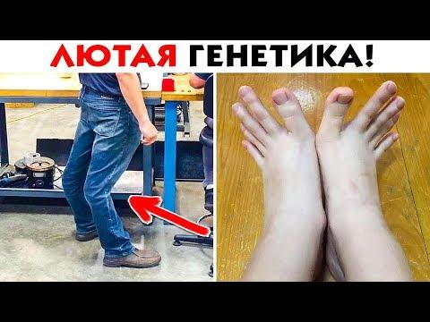 45 ЛЮТЫХ ГЕНЕТИЧЕСКИХ МУТАЦИЙ ЧЕЛОВЕЧЕСКОГО ТЕЛА! - Видео онлайн