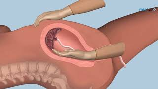 How to perform Manual Removal of the Placenta