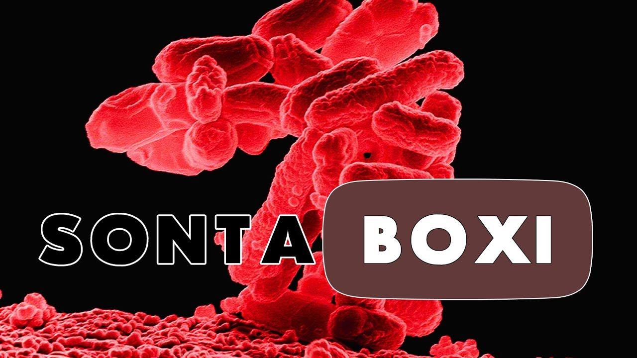 SontaBoxi - top5fin