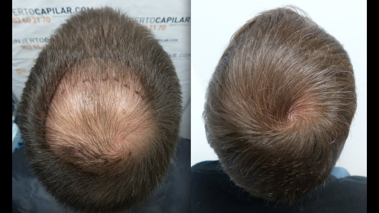 2101 Fu 180 S Hair Transplant By Fue Technique Crown 1121
