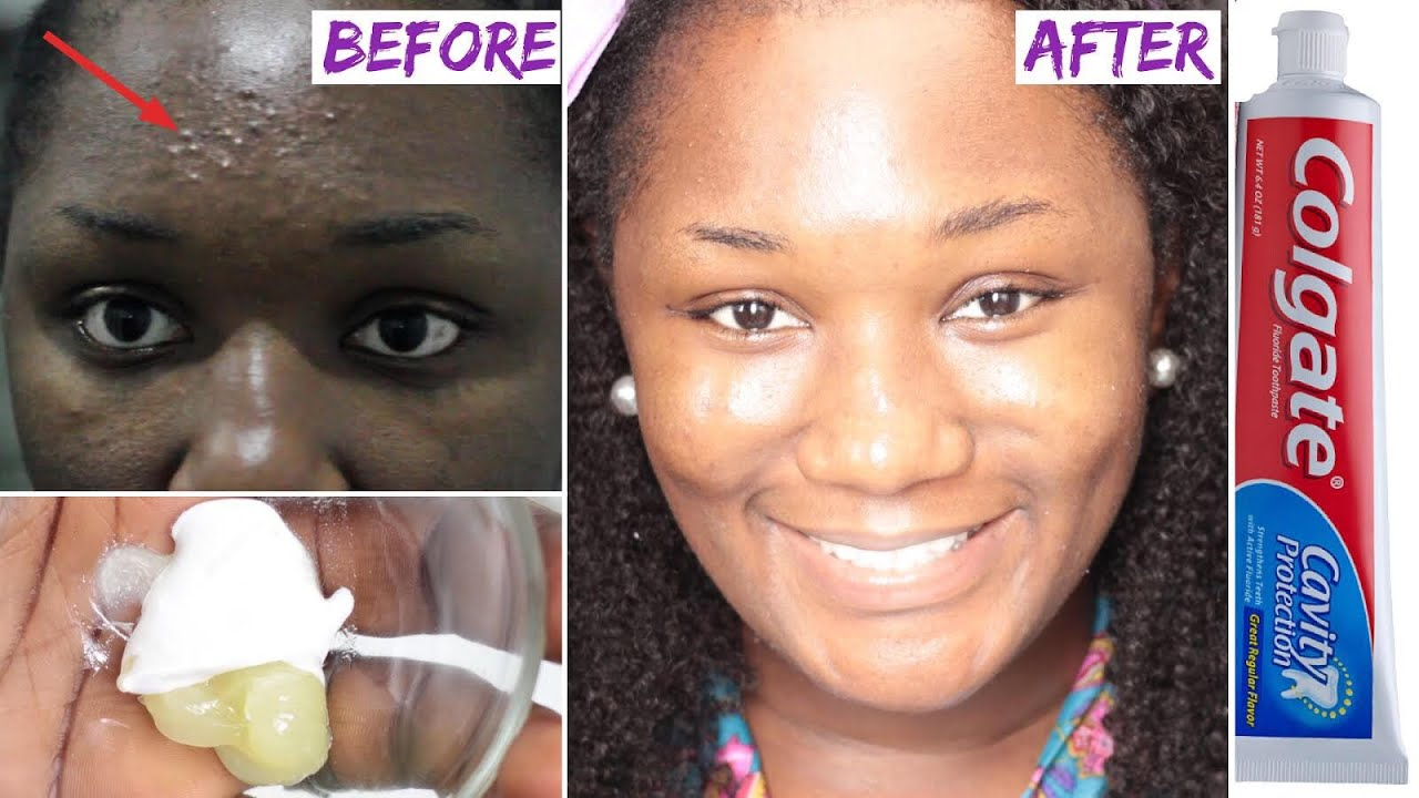 😱 I Applied toothpaste and vaseline on my face and See what happened the  next day!