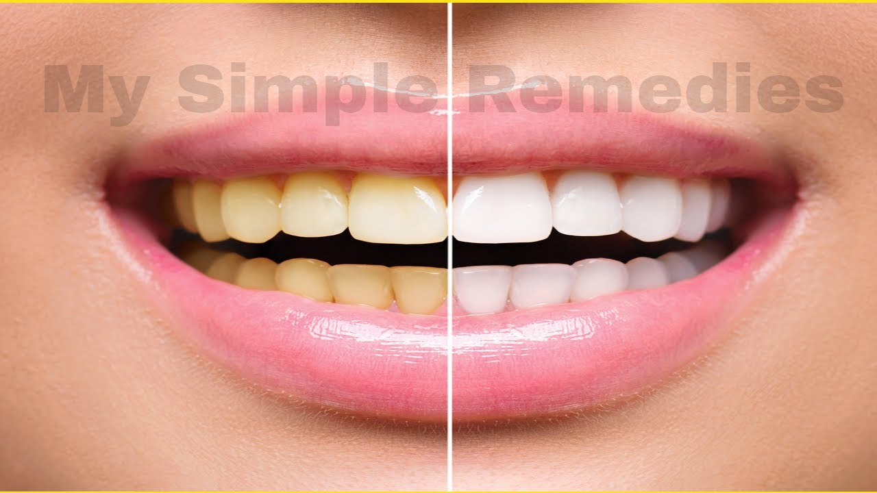 A Dentist Friend Told Me How Whiten Your Yellow Teeth In Less Than 2