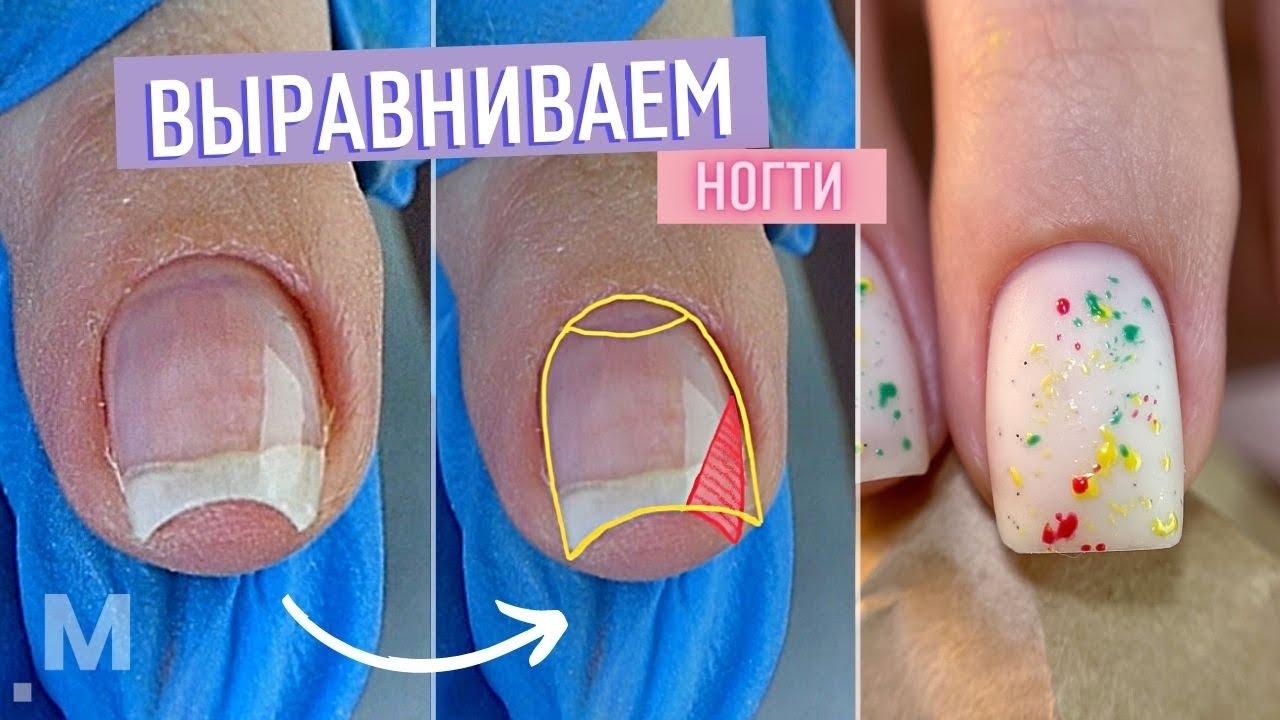 Коррекция ДЕФОРМИРОВАННЫХ ногтей. Исправляем СКРУЧИВАЮЩИЕСЯ и КЛЮЮЩИЕ ногти. Модный маникюр