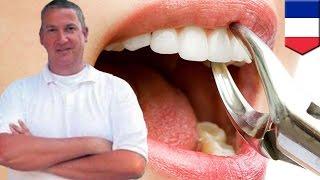 フランス「恐怖の歯科医」被害者は100人以上