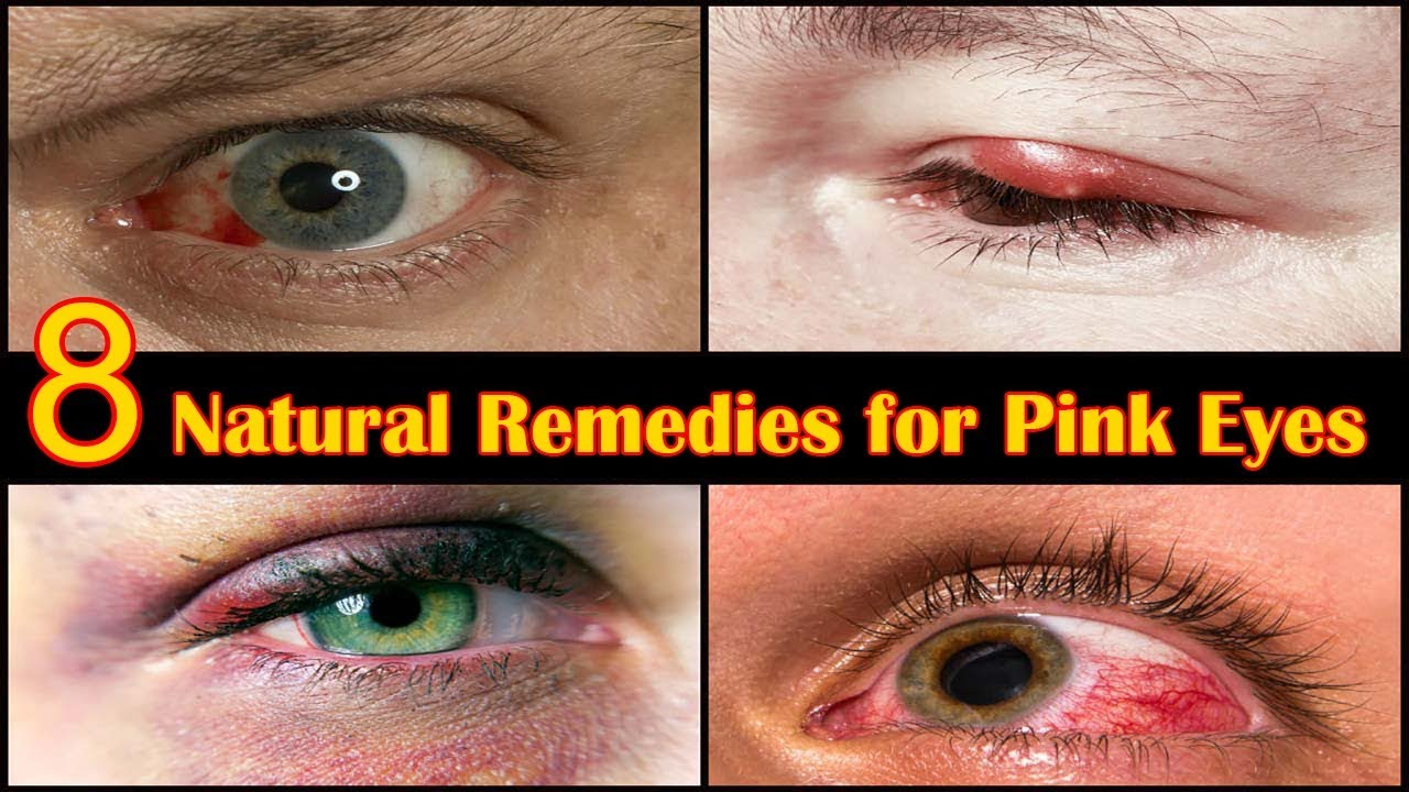 how to prevent pink eye from spreading
