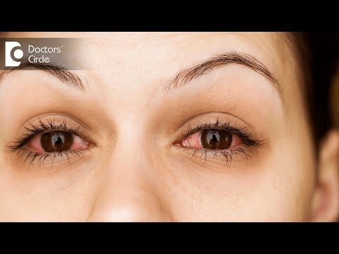 How to get relief from Burning Eyes? - Dr. Sriram Ramalingam