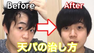 【天パ】天然パーマをサラサラ直毛に治す方法