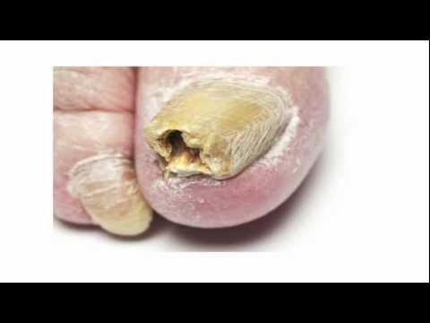 Toenail Fungus Treatment – A Fast Cure For Toenail Fungus You Must Try