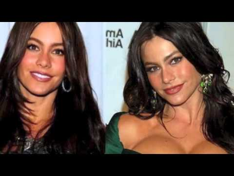 Sofia Vergara Before and After Plastic Surgery Photos