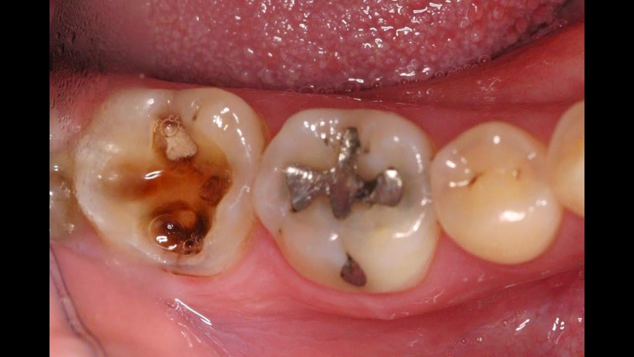 Cara Menyembuhkan Sakit Gigi Yang Berlubang Secara Alami