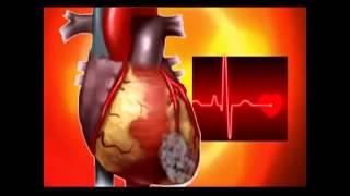 Как работает сердце человека! Первые признаки инфаркта миокарда... mp3