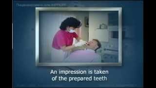 Керамические вкладки Стоматология