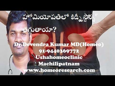 kidney-stones-homeopathic-treatment