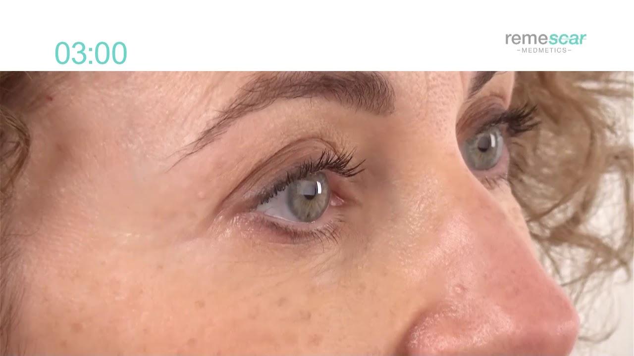 rynkor vid ögonen