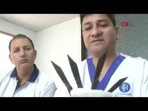 Doctors remove 40 knives from Punjap policeman's stomach