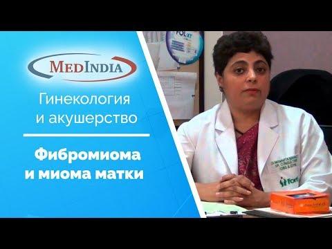 Фибромиома и миома матки: причины, симптомы и признаки