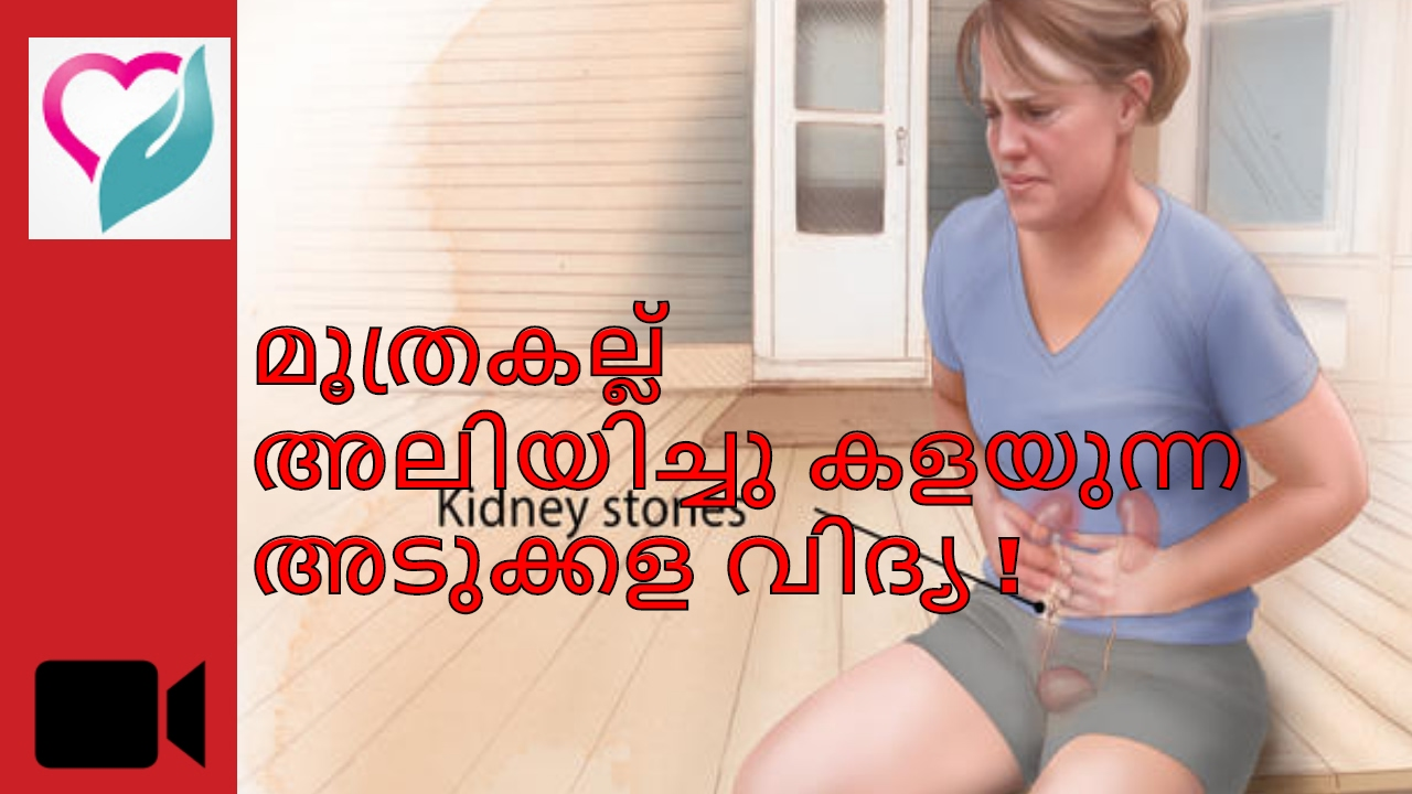 Kidney Stone Natural Treatment Malayalam