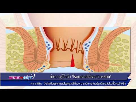 """ทำความรู้จัก """"โรคแผลปริที่ขอบทวารหนัก"""" : พบหมอรามา ช่วง Rama Update 20 ก.ย.60 (1/6)"""