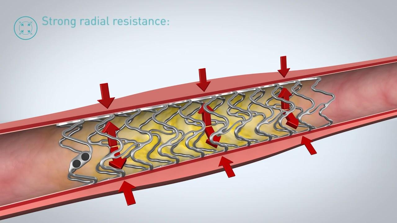 Magmaris Resorbable Magnesium Scaffold (RMS) - YouTube