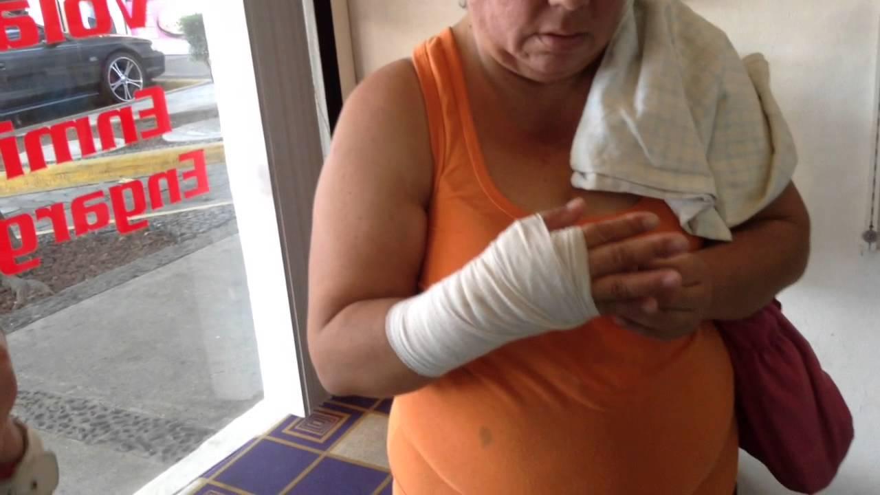 Wrist bone pops back in to placeluz es Sanada de un brazo ...