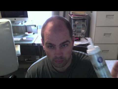Rogaine Review Does Rogaine Work Hair Loss Youtube