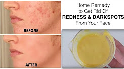 hqdefault - Home Remedy To Reduce Redness Of Pimple
