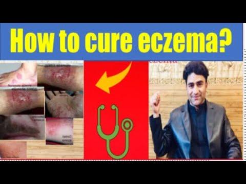 Treatment of eczema/ Dermatitis …..