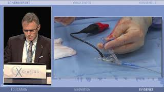IVL Taped Case Review; Dr. Andrew Holden