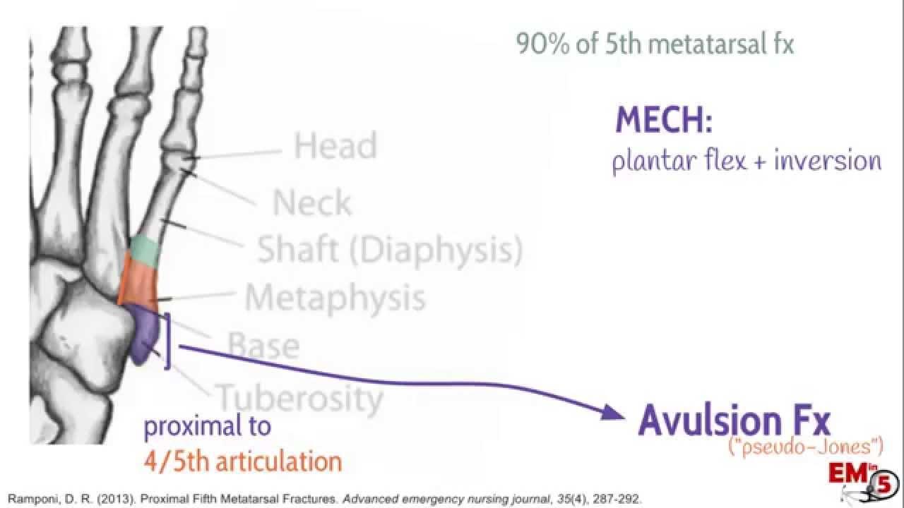 Fifth metatarsal fracture - WikEM