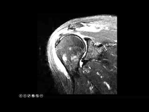 Shoulder Imaging Cases Dr. Amr Saadawy