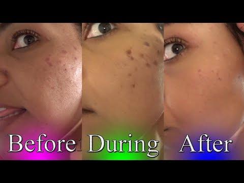 Fade Dark Spots | toothpaste chemical peel