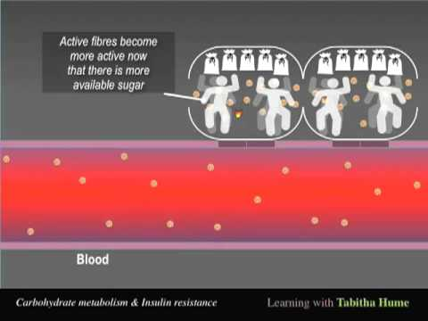 Syndrome X - Insulin Resistance - Tabitha Hume