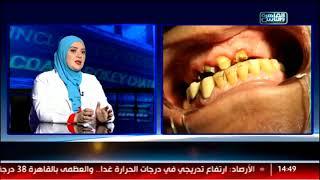الدكتور والناس الحلوة| الجديد في عالم تجميل الأسنان مع د.إسراء السعيد