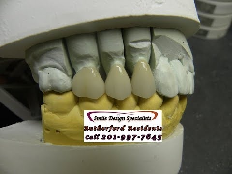 Are porcelain crowns expensive- rutherford nj- call 201-991-1228 Smile Design Specialist