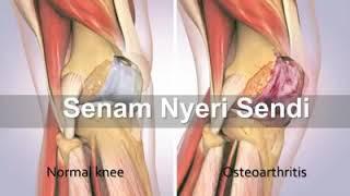 Olahraga TANPA Nyeri Lutut untuk Menurunkan Berat Badan.