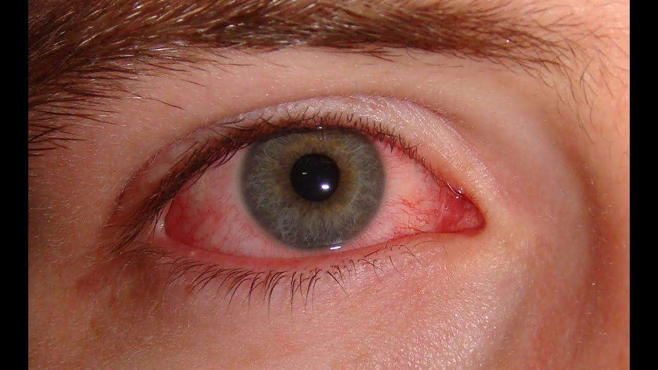 Đau mắt đỏ kiêng ăn gì để nhanh khỏi