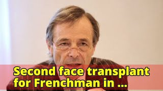 Second face transplant for Frenchman in world-first