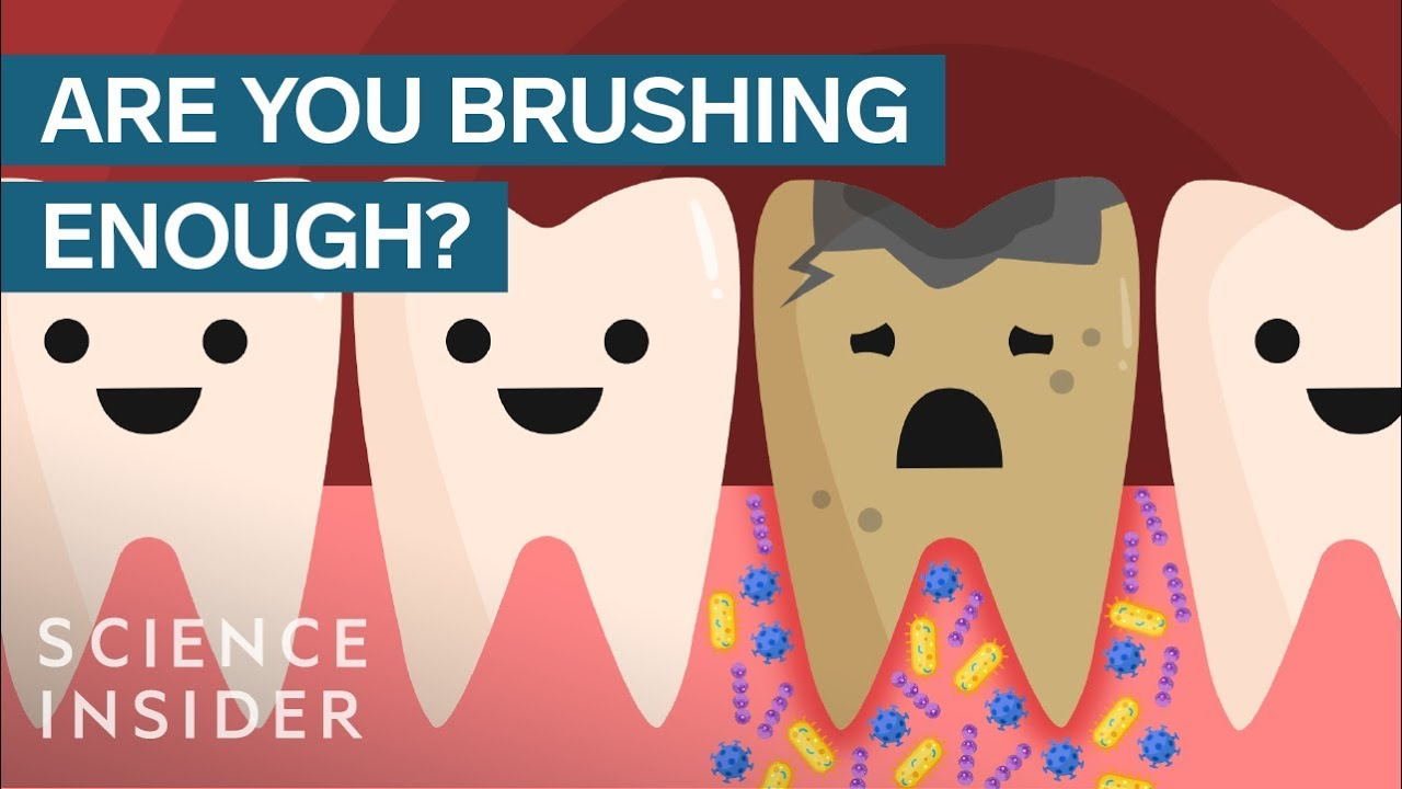 Download Here's What Happens If You Stopped Brushing Your Teeth