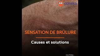Sensations de brûlure - Causes et solutions - Ooreka.fr