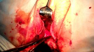 Vaginal Hysterectomy for the Enlarged Fibroid Uterus