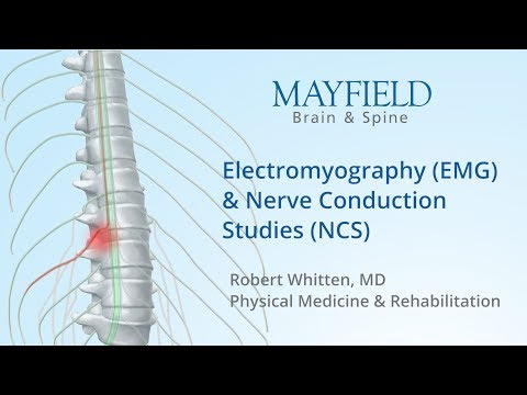 Electromyogram (EMG) and Nerve Conduction Studies - Cure IBM
