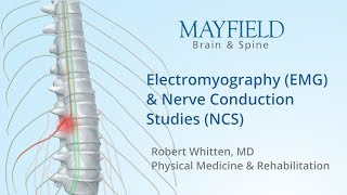 Electromyography (EMG) & Nerve conduction studies (NCS)
